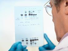 Генетики обнаружили у ракового гена BRCA1 неожиданное свойство